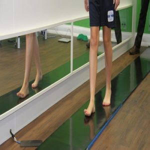 A Sports Therapy Manchester, Gait Analysis 4